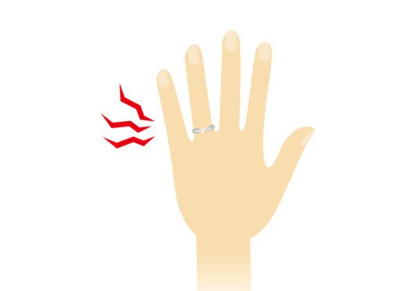 指輪が取れない